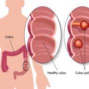 vastagbél rákmegelőző állapot