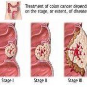 kolon tumor, azaz vastagbélrák