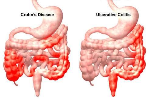 diéta idegi vastagbélgyulladás
